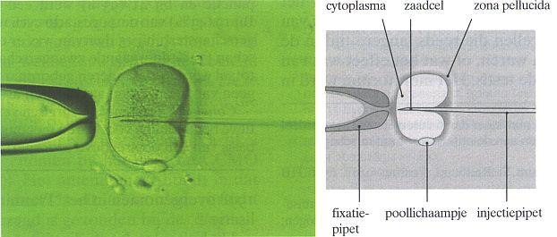 ICSI intra cytoplasmatische sperma injectie