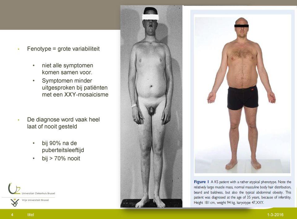 Syndroom van Klinefelter symptomen