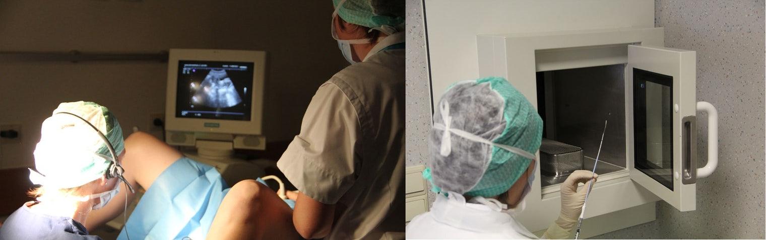 hoe gaat een embryo transfer in zijn werk?