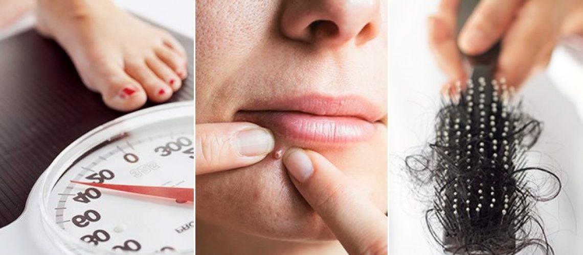 PCOS – Polycyteus ovarium syndroom symptomen, behandeling & dieet