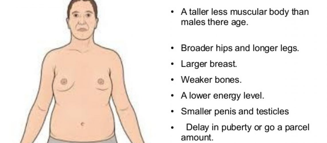 Klinefelter syndroom symptomen en oorzaak
